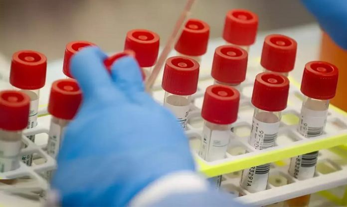 Eight Private Labs Get Approval From Icmr To Conduct Covid-19 Confirmation Tests